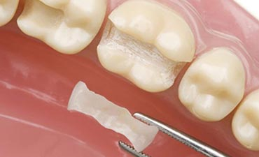 dental-inlay