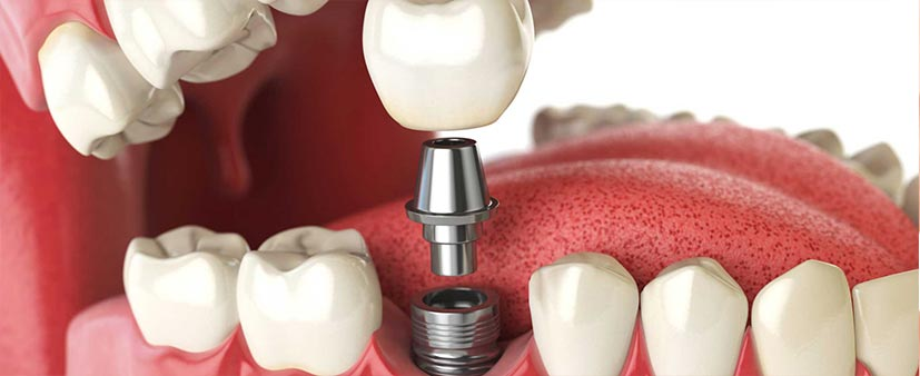 Dental-Implants-11