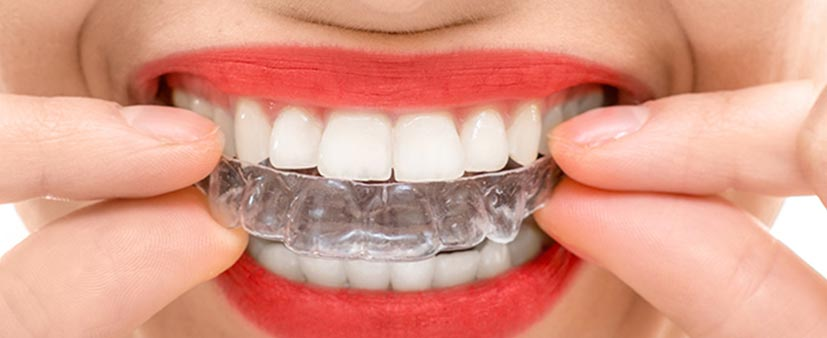 Orthodontics--11jpg