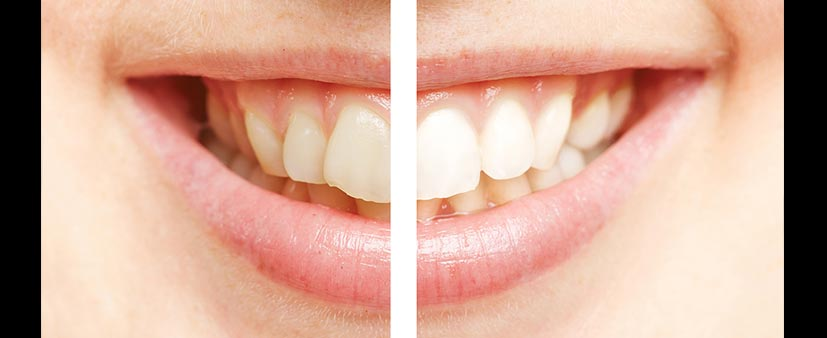 bigstock-Comparison-between-white-teeth-